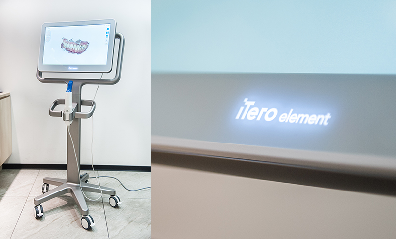 iTero-2-口腔掃描機