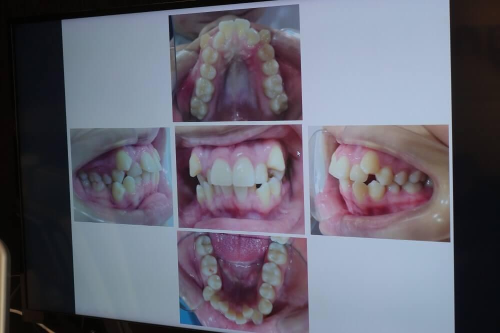 嚴重牙齒凌亂