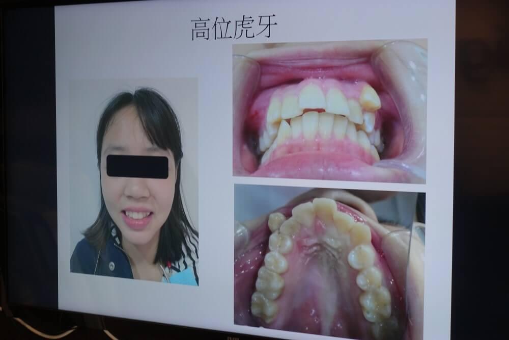 矯正困難度高的高位虎牙