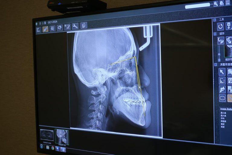 側頭顱影像