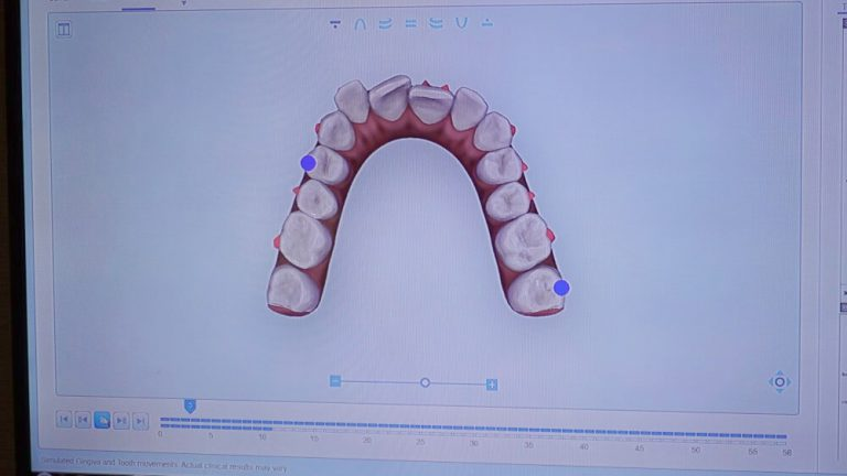 i Tero 2 掃描取得口腔3D模型
