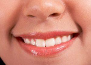 桃園牙醫推薦 藝文特區牙醫 藝品牙醫 蔡明根醫師