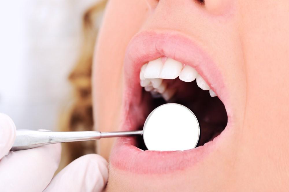 桃園牙醫 桃園牙醫推薦 藝品牙醫 隱適美