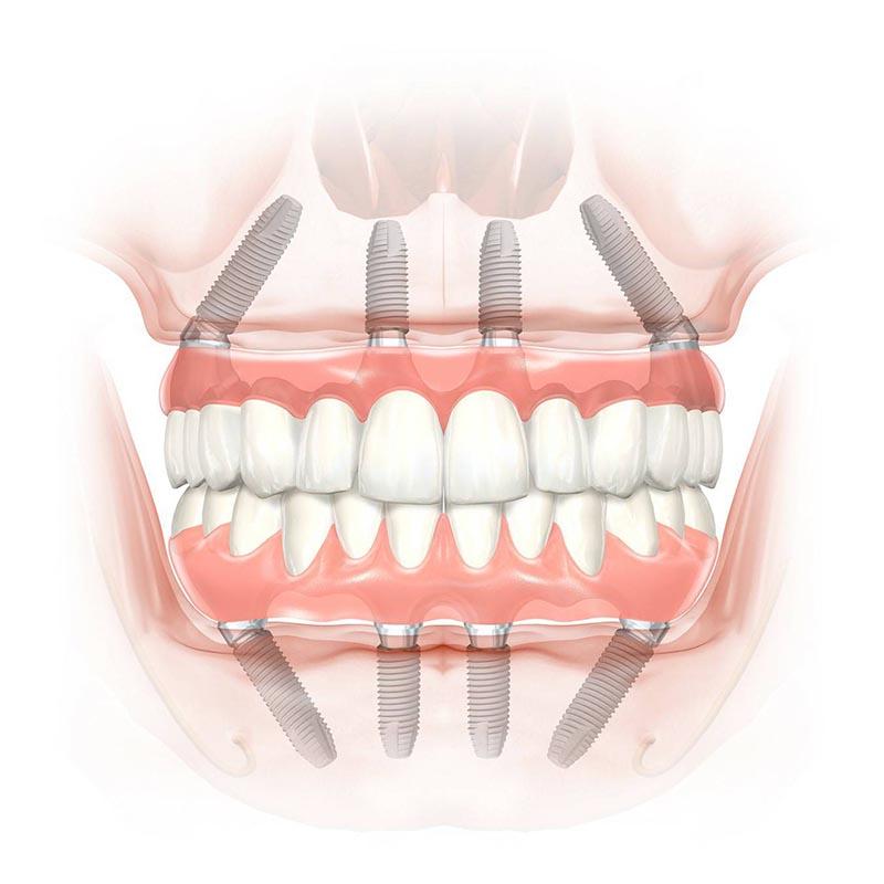 淺談全口重建:解決多顆缺牙或無牙的治療方案