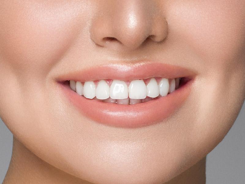 使用牙齒陶瓷貼片,為你的笑容上妝
