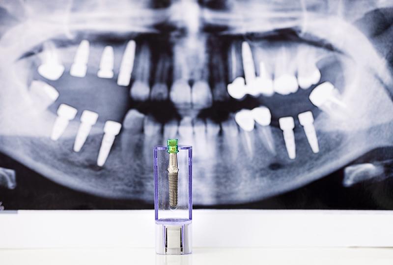 如何避免植牙後遺症?鼻竇炎和牙周病會導致植牙後遺症嗎?