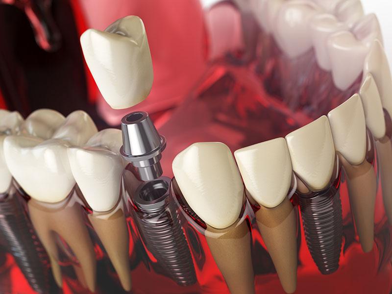 全口植牙要多少錢?ptt都在問的全口植牙,價格貴嗎?